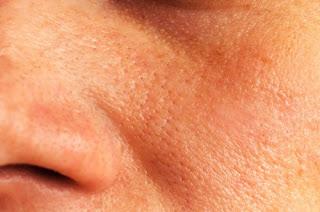 5 remèdes maison pour réduire les pores dilatés