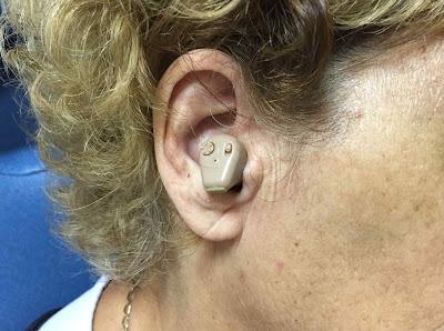 Sobre audífonos y amplificadores de sonido: entre curioso y peligroso