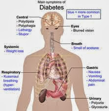 diagram gejala diabetes