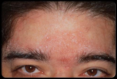 facial rash #9
