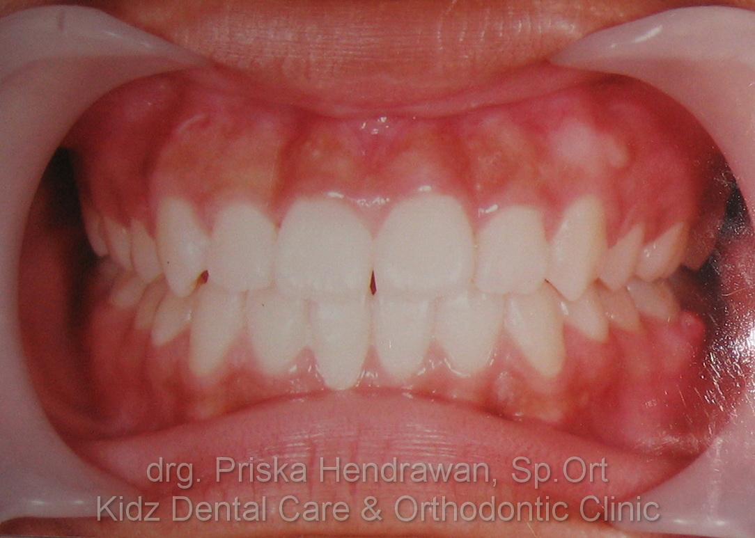 Sebelum dan Sesudah Memakai Behel Gigi – Kidz Dental Care 94f67a92ce