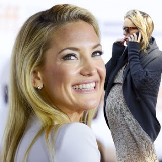 Kate Hudson hair loss post pregnancy