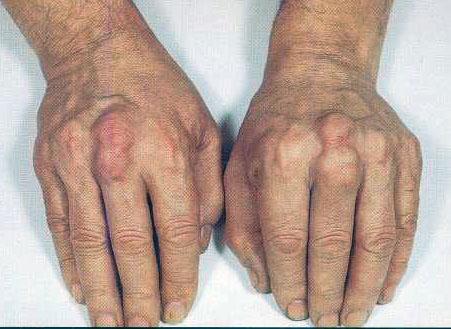 Rare disease: Vaginal lichen planus: preservation of ...