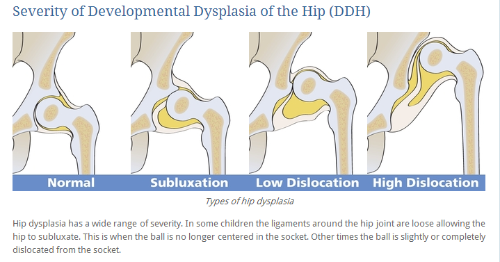 how to tell hip dysplasia ultrasound