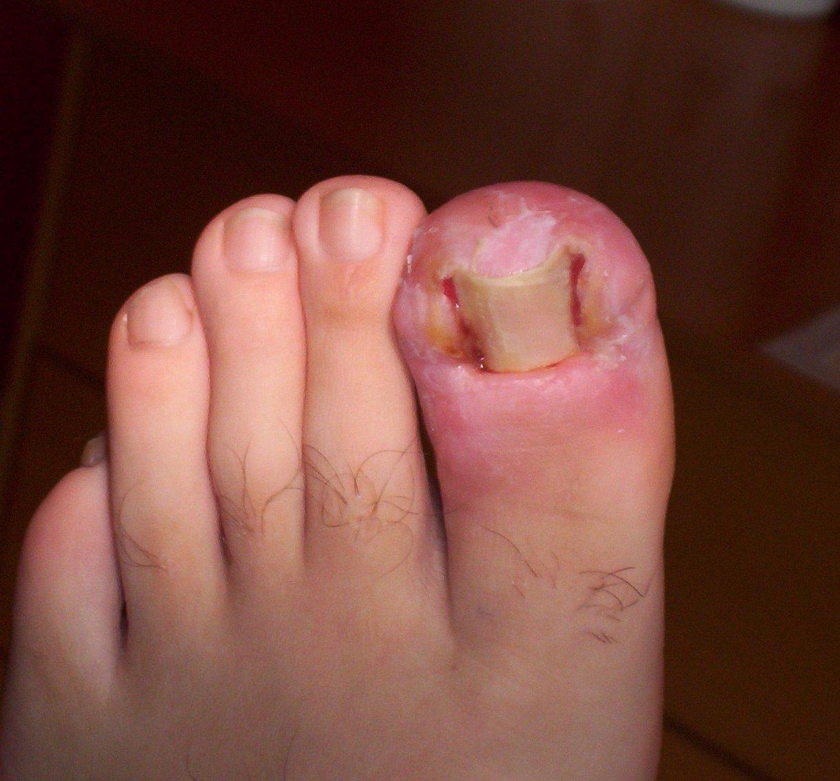 Badly Infected Ingrown Toenail Ingrown Toenails - Top...