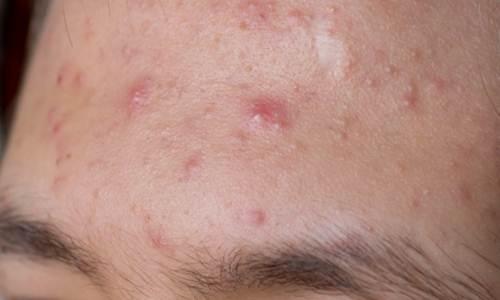 Sana il gel che si schiarisce per pelle di faccia con miele
