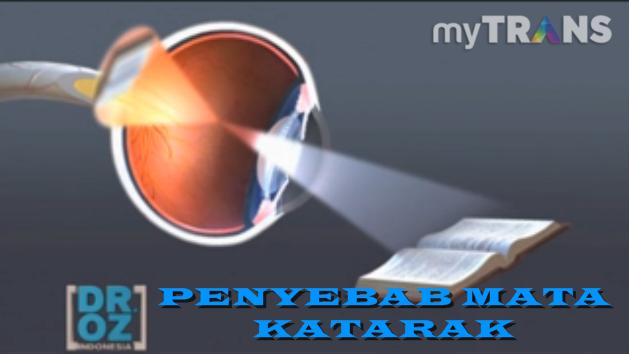 operasi katarak dengan laser, obat tradisional untuk katarak, penyebab kebutaan pada mata, operasi mata laser