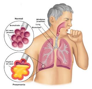http://katumbu.blogspot.com/2012/10/konsep-medis-bronkopneumonia.html