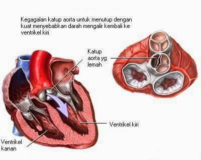 Pengobatan penyakit jantung rematik secara alami yang manjur