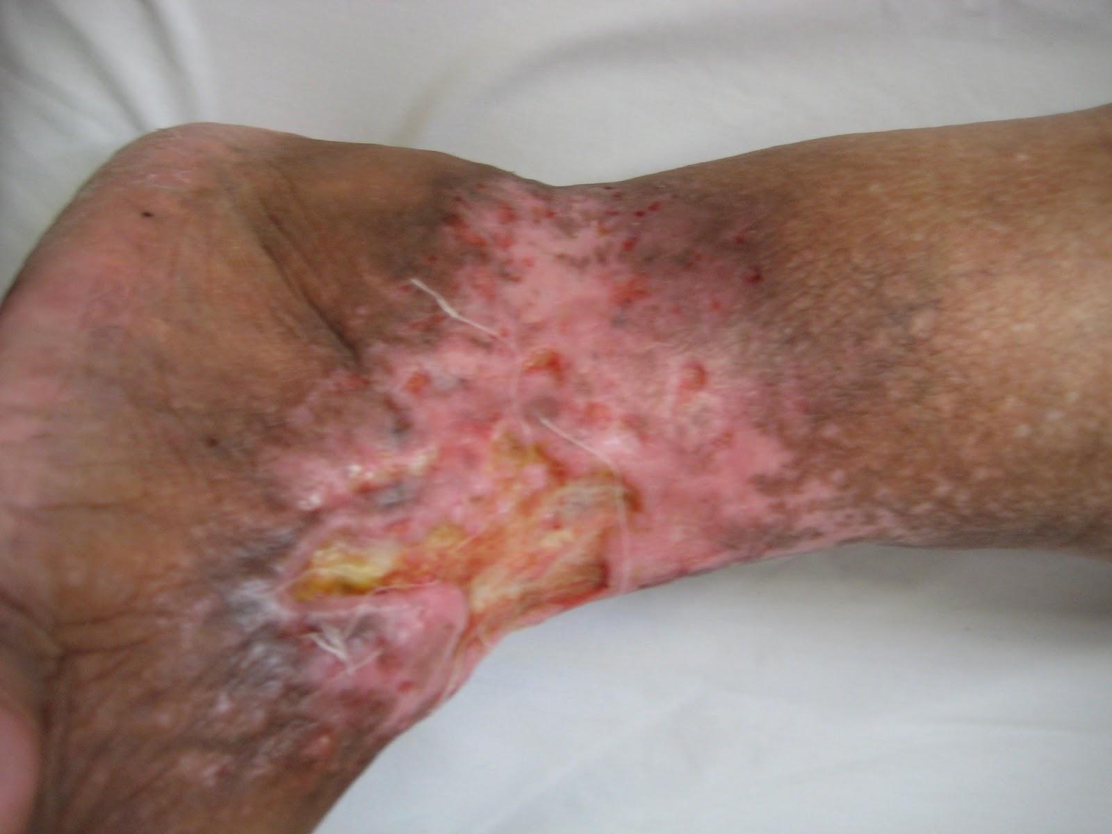 La cirugía vascular limfostaz de las extremidades inferiores