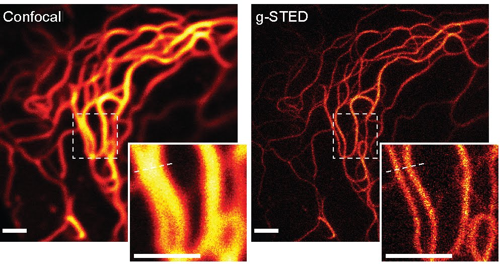 Stimulated Emission Depletion microscopy