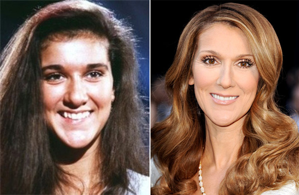 Chatter Busy: Celine Dion Plastic Surgery