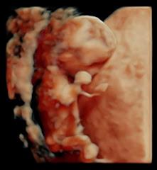 3d ultraljud kalmar
