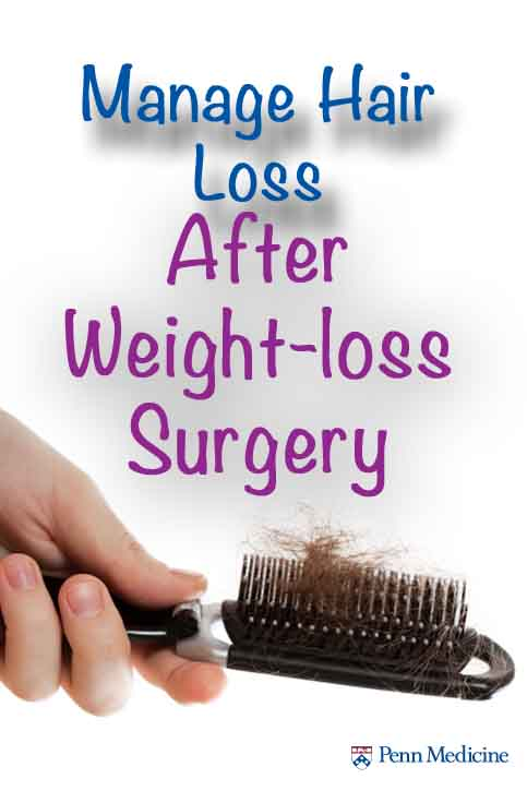 hair loss after weight loss surgery