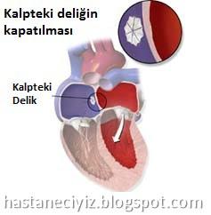 kalp deliği ameliyatı