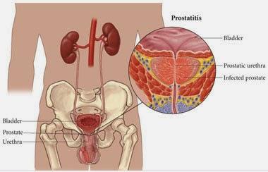 Obat Tradisional Prostatitis