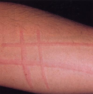Abdominal rash in adult