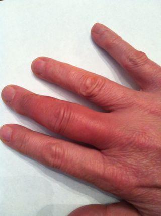 Ringfinger bänderriss Strecksehnen