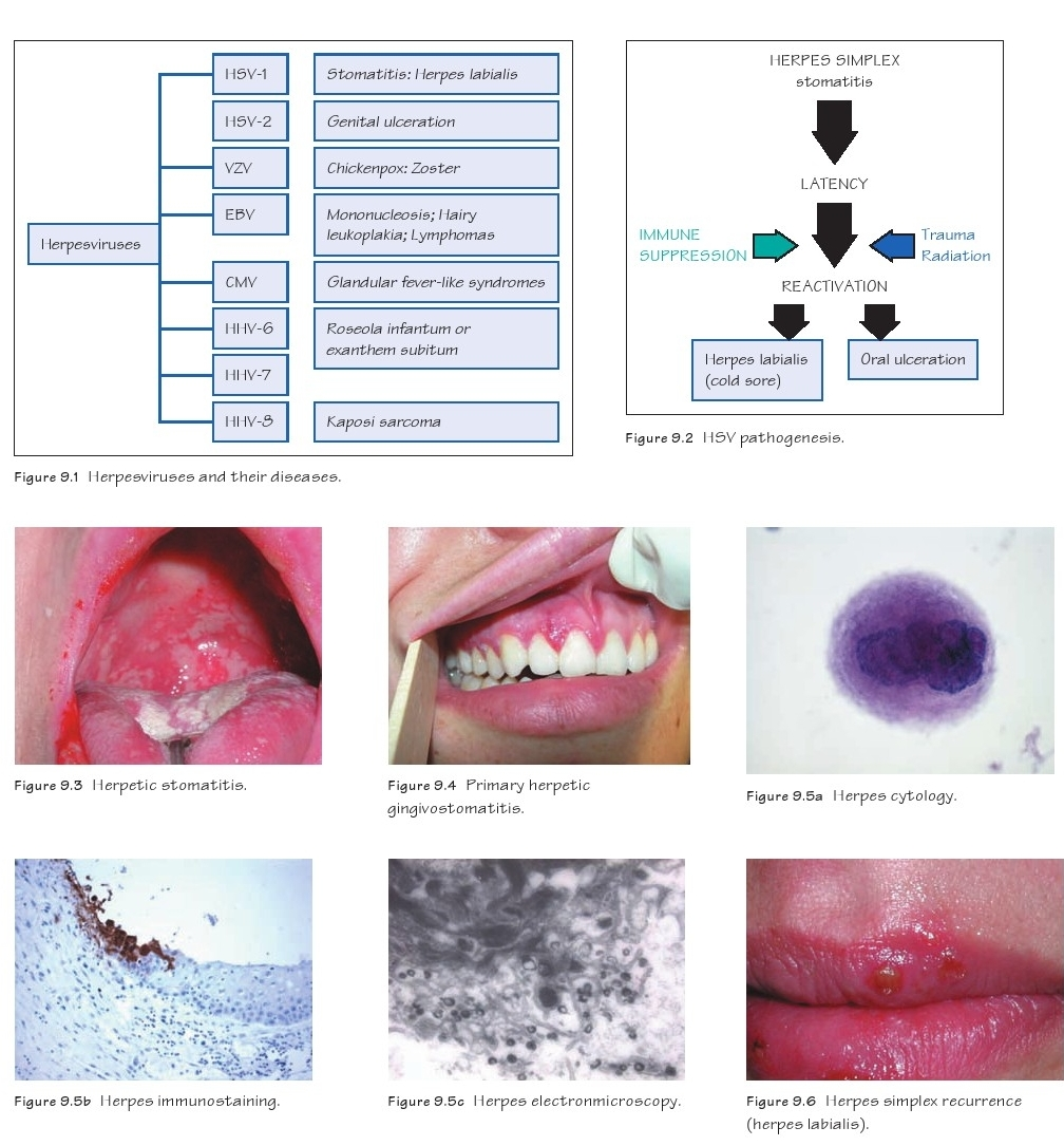 herpes simplex infections dentistry and medicine