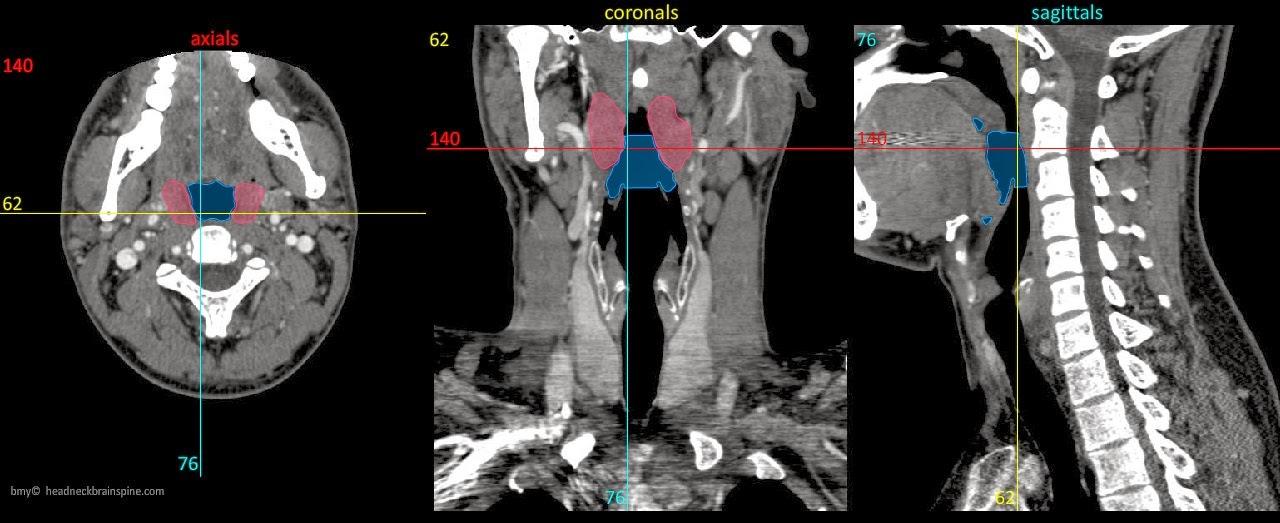 Anatomía y patología de cuello | ESPE 202 - 2014