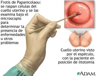 El tratamiento de la osteocondrosis de la espalda el cargador