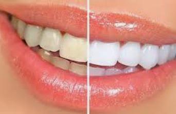 Tips Memutihkan Gigi Kuning Secara Alami