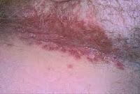 Ya sea que lo creas o no, el uso de peróxido de hidrógeno para el tratamiento de la infección por levaduras se ha demostrado que sea cierto y bastante eficaz .