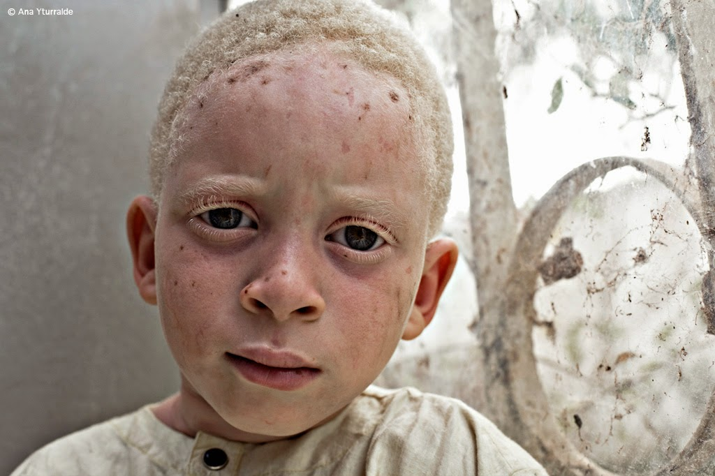 african albinos