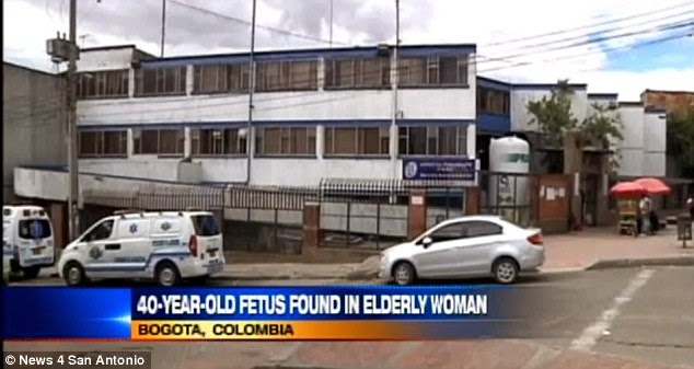 حقائق مذهلة: بالفيديو : إمرأة شعرت بآلام في بطنها فإكتشفوا وجود جنين عمره 40 عاماً بداخلها !