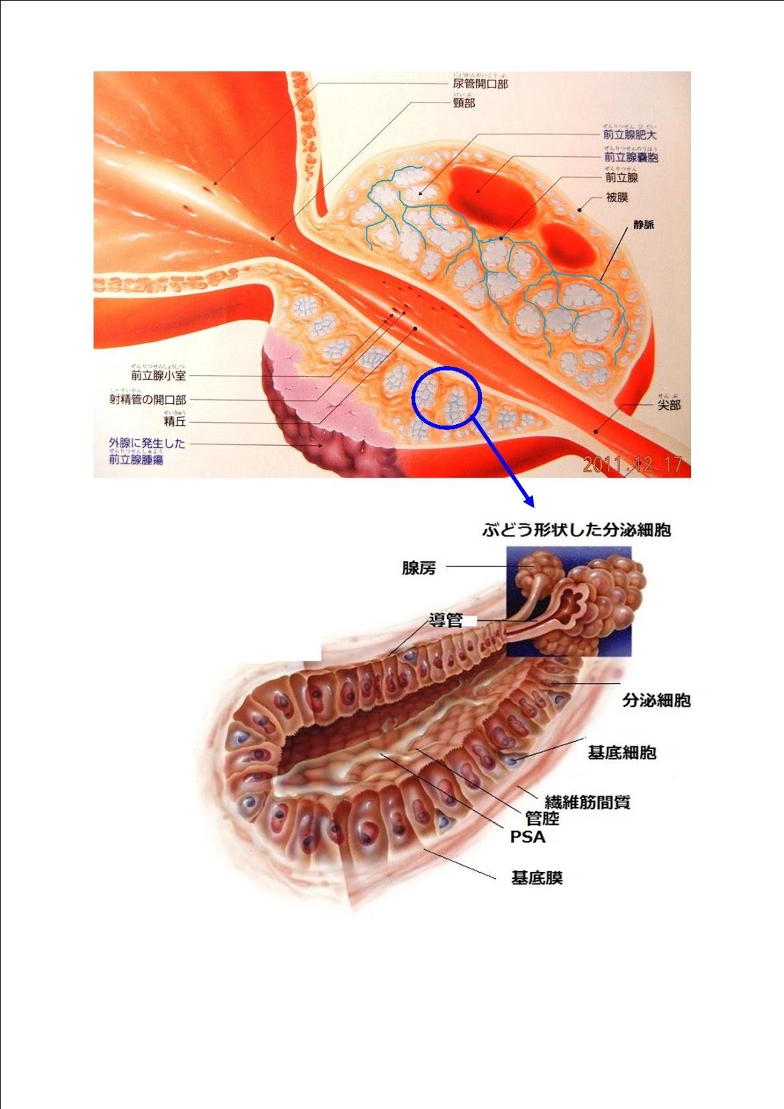 前立腺肥大と食事│原因:前立腺肥大が原因か …