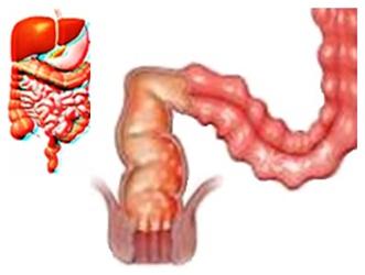 Chronic Diarrhea Chronic diarrhea means old diarrhea which obtains