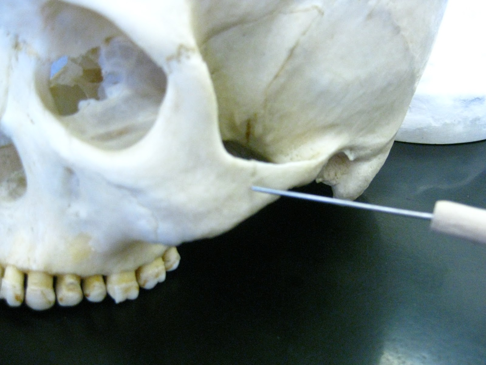 Boned Human Skull Temporal Process Of Zygomatic Bone