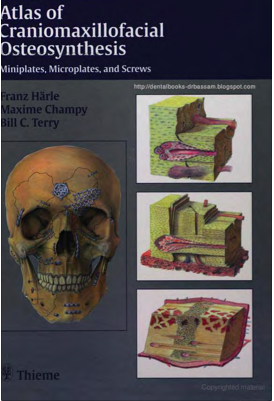 craniomaxillofacial osteosynthesis Atlas of craniomaxillofacial osteosynthesis: microplates, miniplates, and screws by terry, bill, champy, maxime, haerle, franz and a great selection of similar used, new and collectible books available now at abebookscom.