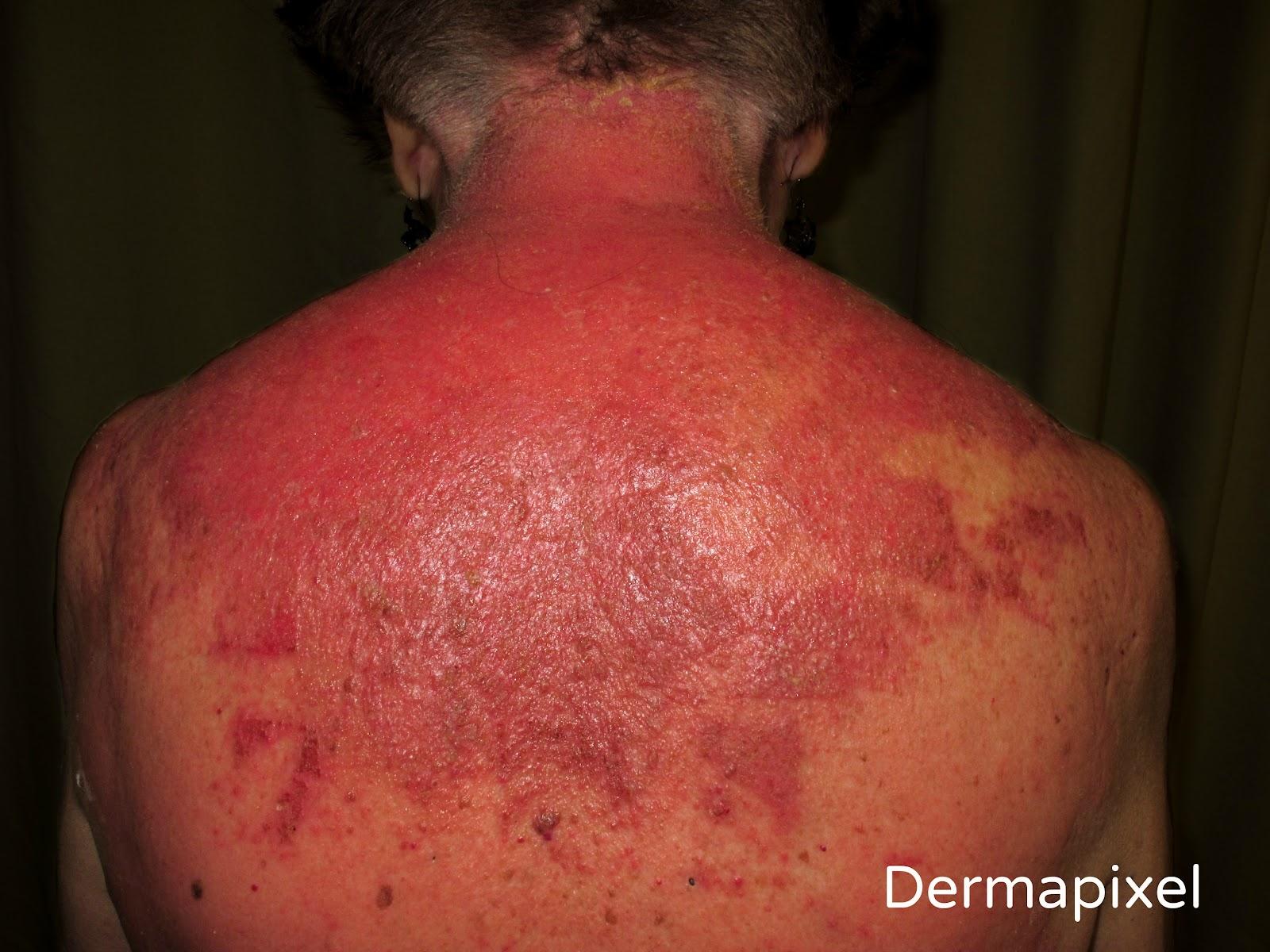 El solario para la psoriasis