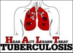 http://obeyherbal.blogspot.com/2015/09/cara-alami-mencegah-penyakit-tbc.html