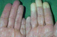 Doença do Dedo Branco ocasionada por vibração