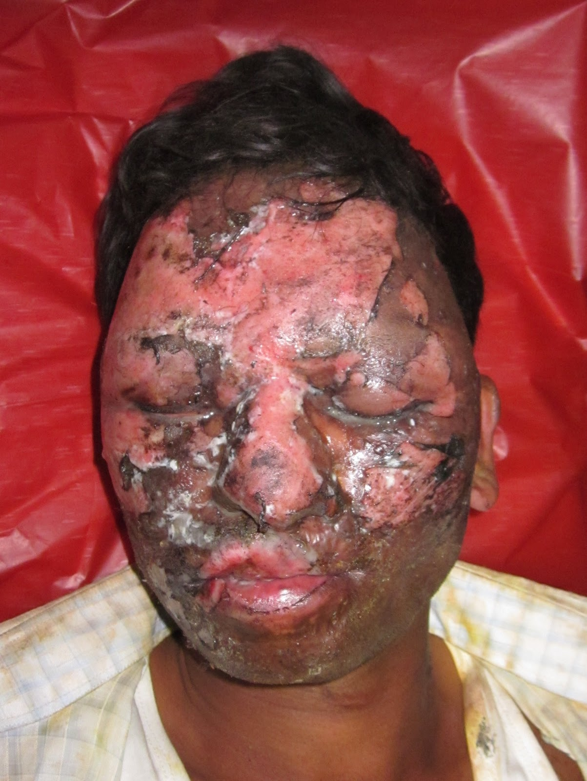 Has facial burn pictures super