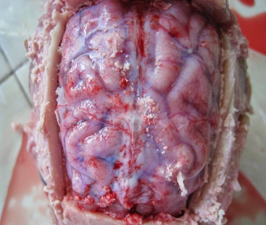Hình 3: Viêm màng não trên heo nhiễm S. suis.
