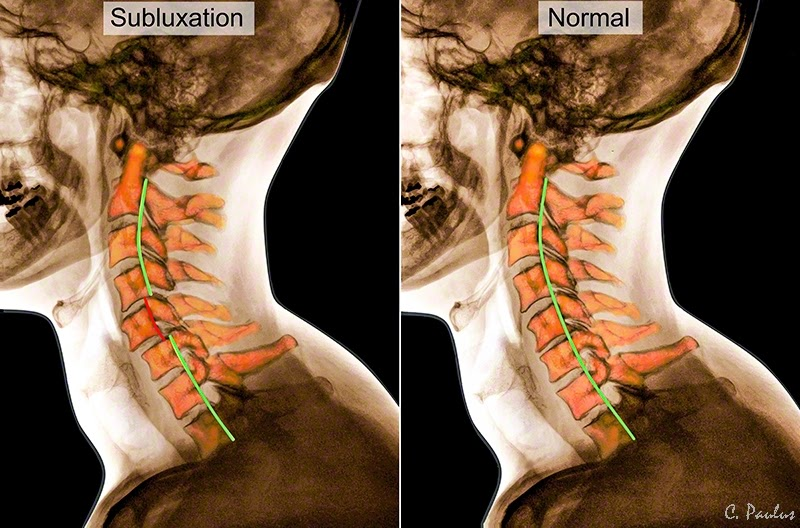 Lateral Cervical Spine Color X-Ray Images of a Chiropractic Subluxation and Normal Aligment Lordosis