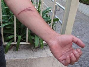 Irmão da vítima teve cortes no braço após garrafada (Foto: Marcelo Mora)