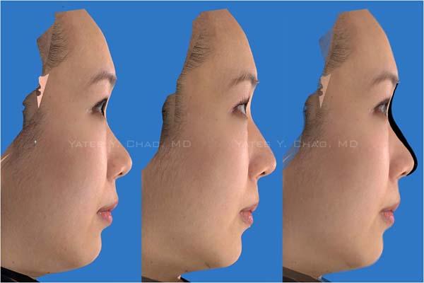 Hydermis, Radiesse, 水微晶, 微晶瓷, 3D晶塑 注射隆鼻