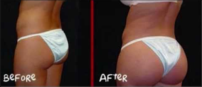 Gluteboost pills before and after photos