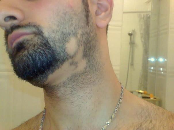 Выпадение волос у мужчин Признаки причины лечение