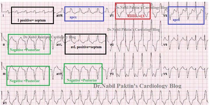 Dr Nabil Paktin U0026 39 S Cardiology Blog  U0645 U062c U0644 U0647  U06a9 U0627 U0631 U062f U06cc U0648 U0644 U0648 U0698 U06cc  U062f U06a9 U062a U0648 U0631