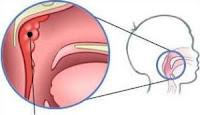 Migdałek gardłowy