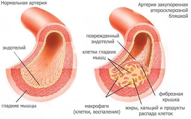 омега от холестерина в крови