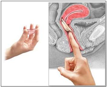 Colocación del diafragma dentro de la vagina