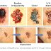 Melanoma-Skin Cancer-Is This Mole Cancerous