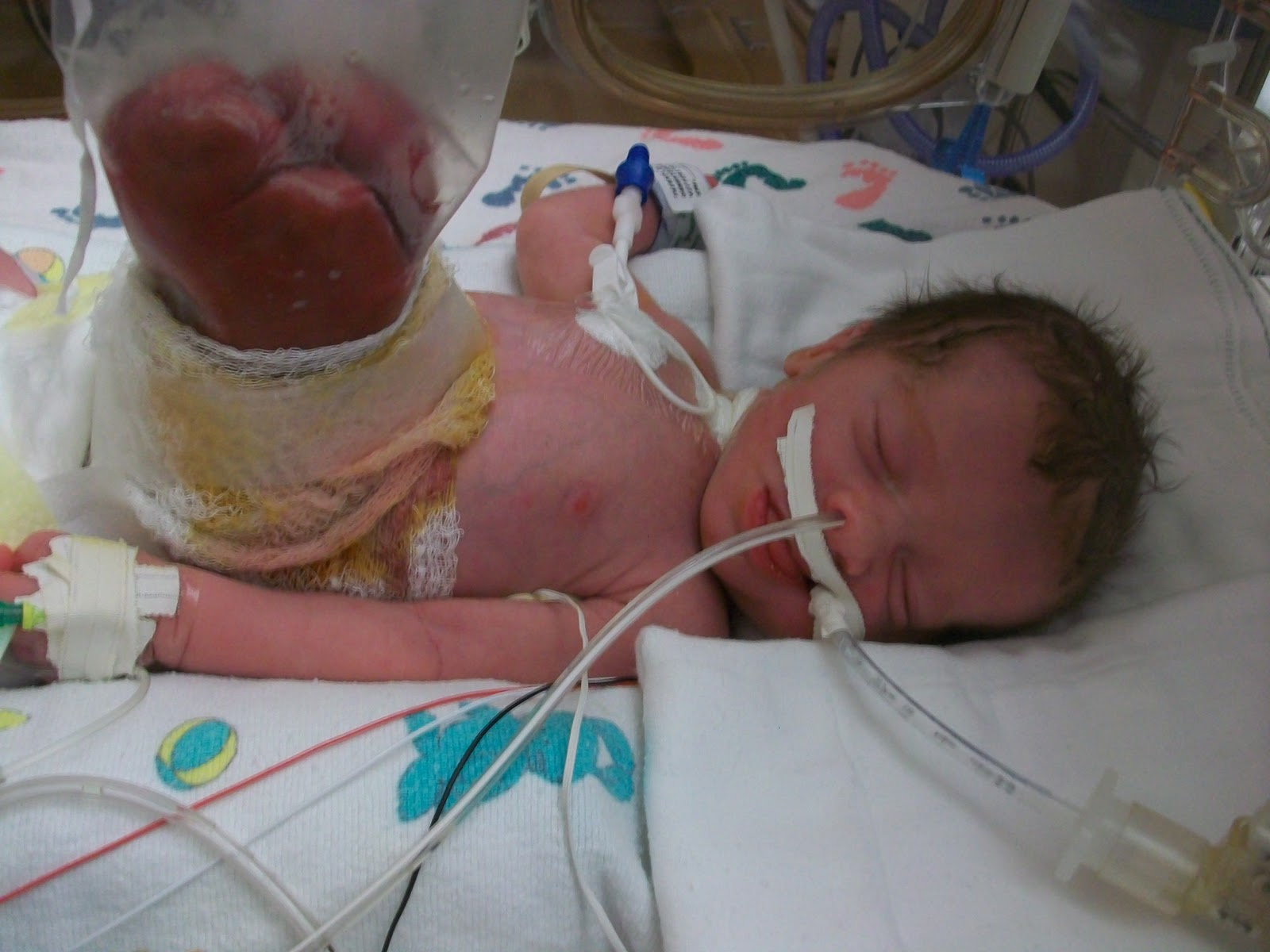 Gastroschisis Matters Of The Heart And Home