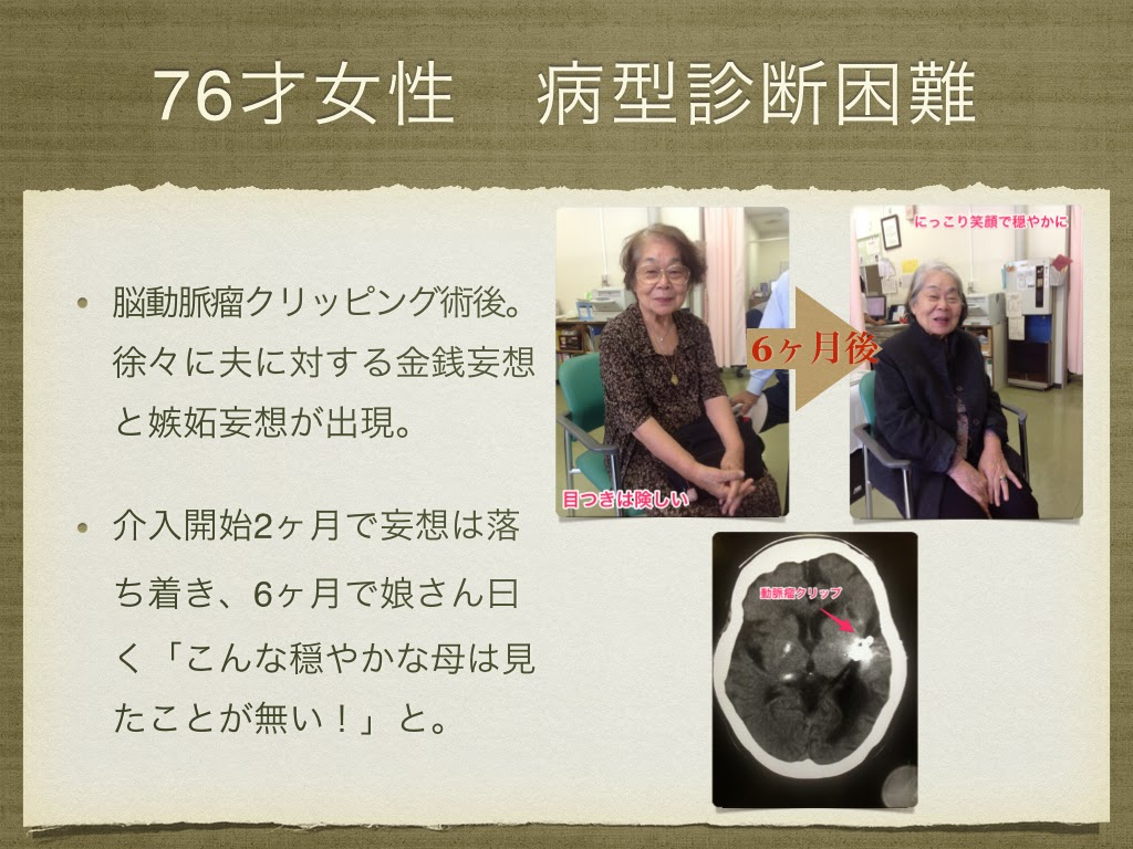 76歳女性。くも膜下出血のクリッピング術後で認知症も合併。大幅改善。